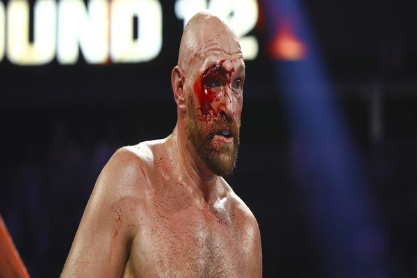 Challenger earns respect, but bloody Tyson Fury wins fight